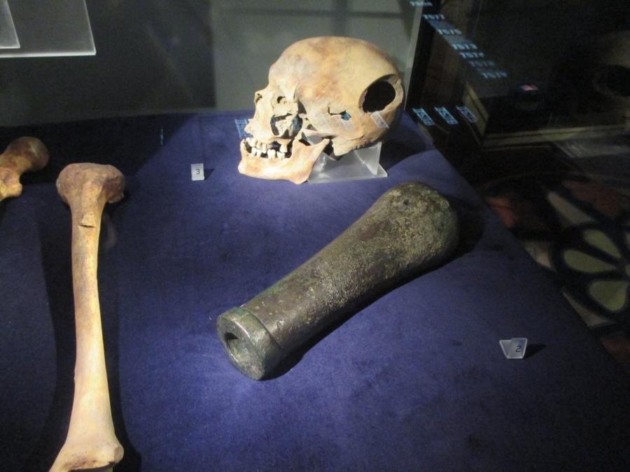 Skull with mortal blow, Historiska museum